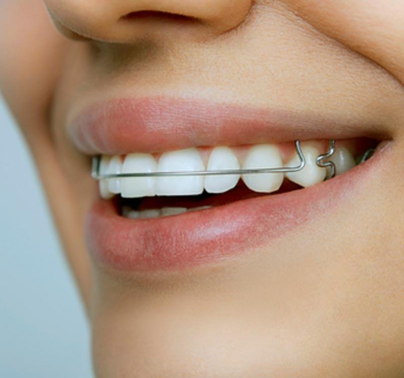 Orthodontics in West Sussex - retainer brace